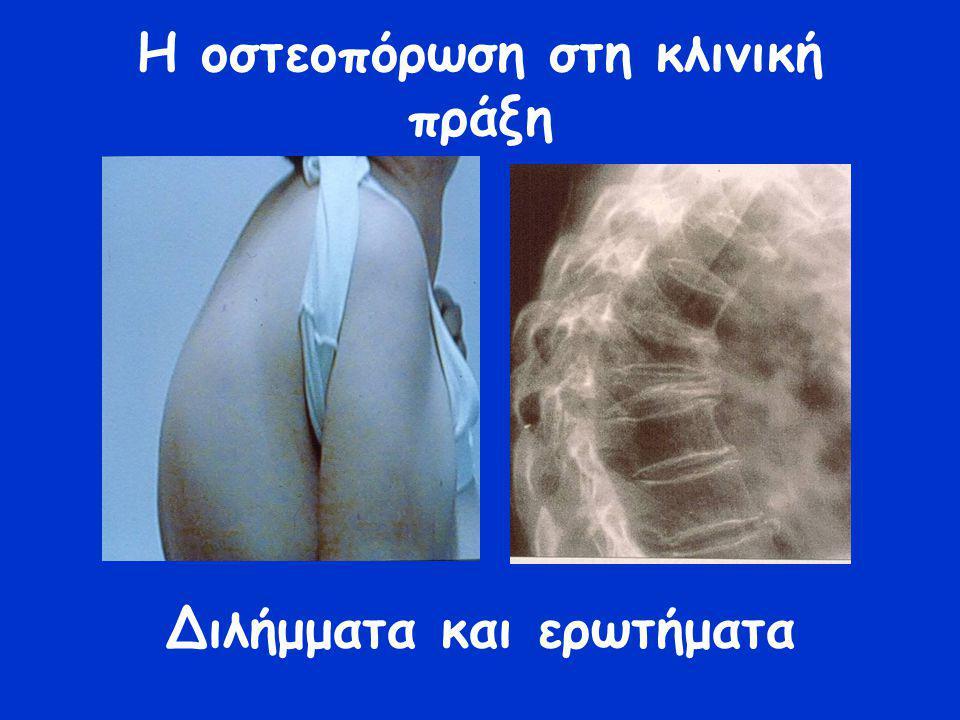 Σπονδυλικά κατάγματα Γενικά στοιχεία Συνήθως ασυμπτωματικά (2/3) Συμπτωματικά για 4-6 εβδομάδες Επιμονή ισχυρού άλγους πέραν αυτού-εναλλακτική διάγνωση Κύφωση -ενδεικτική πολλαπλών σφηνοειδών καταγμάτων -προβολή κοιλίας -αυχεναλγία -περιορισμός αναπνοής -δυσκολία στις καθημερινές δραστηριότητες-σκύψιμο, ανυψωση, κάθοδος κλιμακοστασίου, μαγειρική