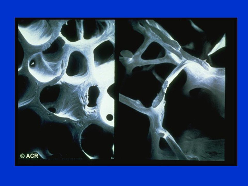 Παθογένεια Διαταραχή μικροαρχιτεκτονικής (;) –  remodeling –Διασπάσεις δοκιδώδους οστού/ απώλεια οριζόντιων δοκίδων Eλαττωμένη οστική μάζα –  κορυφαία οστική μάζα Γενετικοί –πολυμορφησμοί γονιδίων: Vit D receptor, BMP-2 κ.ά.