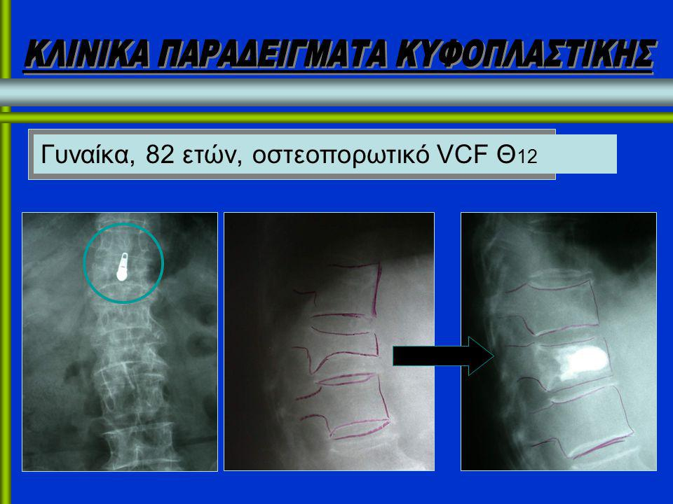 Γυναίκα, 82 ετών, οστεοπορωτικό VCF Θ 12