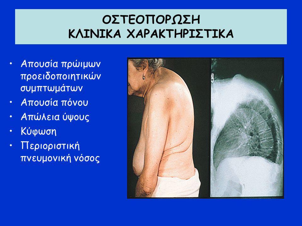 ΟΣΤΕΟΠΟΡΩΣΗ ΚΛΙΝΙΚΑ ΧΑΡΑΚΤΗΡΙΣΤΙΚΑ Απουσία πρώιμων προειδοποιητικών συμπτωμάτων Απουσία πόνου Απώλεια ύψους Κύφωση Περιοριστική πνευμονική νόσος