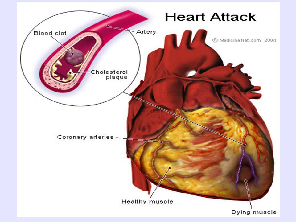 Πρωτεύοντα ρόλο στην αντιμετώπιση της υπερχοληστερολαιμίας παίζει η μείωση των επιπέδων της LDL- χοληστερόλης : Καθημερινή άσκηση και χαμηλή κατανάλωση χοληστερόλης Η άσκηση «καίει το λίπος και εμποδίζει την μετατροπή του σε χοληστερόλη την οποία το σώμα πρέπει να διαθέσει.