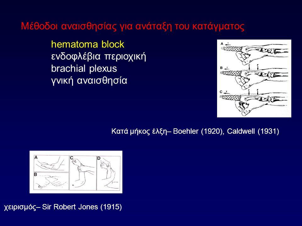 Μέθοδοι αναισθησίας για ανάταξη του κατάγματος hematoma block ενδοφλέβια περιοχική brachial plexus γνική αναισθησία χειρισμός– Sir Robert Jones (1915) Κατά μήκος έλξη– Boehler (1920), Caldwell (1931)