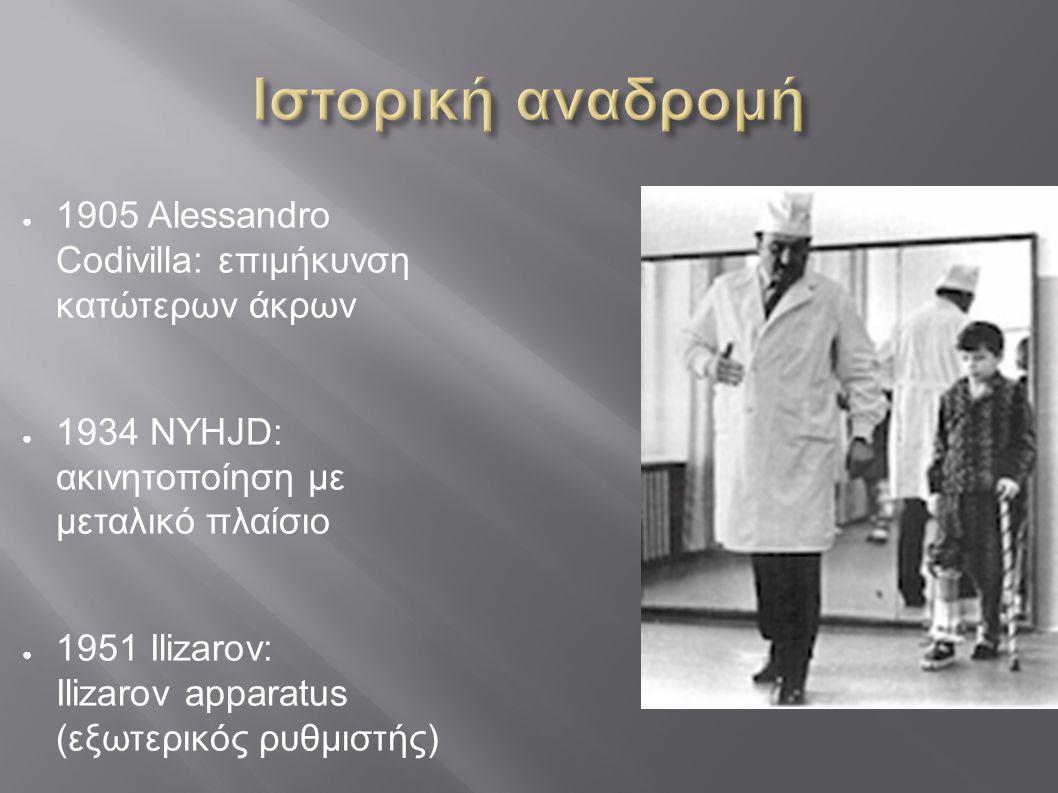 ● 1905 Alessandro Codivilla: επιμήκυνση κατώτερων άκρων ● 1934 NYHJD: ακινητοποίηση με μεταλικό πλαίσιο ● 1951 Ilizarov: Ilizarov apparatus (εξωτερικό