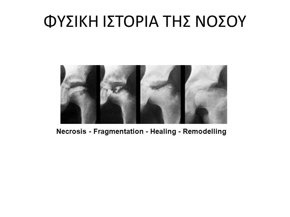 ΦΥΣΙΚΗ ΙΣΤΟΡΙΑ ΤΗΣ ΝΟΣΟΥ Necrosis - Fragmentation - Healing - Remodelling