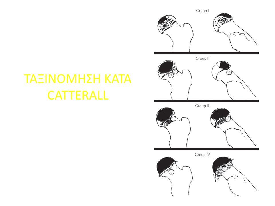 ΤΑΞΙΝΟΜΗΣΗ KATA CATTERALL