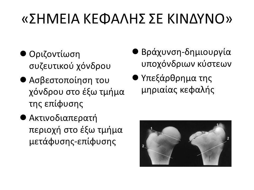 «ΣΗΜΕΙΑ ΚΕΦΑΛΗΣ ΣΕ ΚΙΝΔΥΝΟ» Οριζοντίωση συζευτικού χόνδρου Ασβεστοποίηση του χόνδρου στο έξω τμήμα της επίφυσης Ακτινοδιαπερατή περιοχή στο έξω τμήμα
