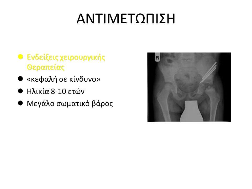 ΑΝΤΙΜΕΤΩΠΙΣΗ Ενδείξεις χειρουργικής Θεραπείας Ενδείξεις χειρουργικής Θεραπείας «κεφαλή σε κίνδυνο» Ηλικία 8-10 ετών Μεγάλο σωματικό βάρος