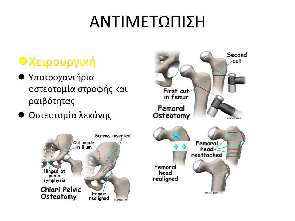 ΑΝΤΙΜΕΤΩΠΙΣΗ Χειρουργική Χειρουργική Υποτροχαντήρια οστεοτομία στροφής και ραιβότητας Οστεοτομία λεκάνης