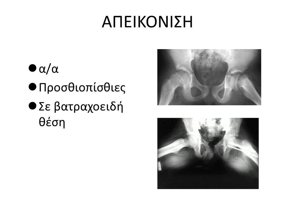 ΑΠΕΙΚΟΝΙΣΗ α/α Προσθιοπίσθιες Σε βατραχοειδή θέση