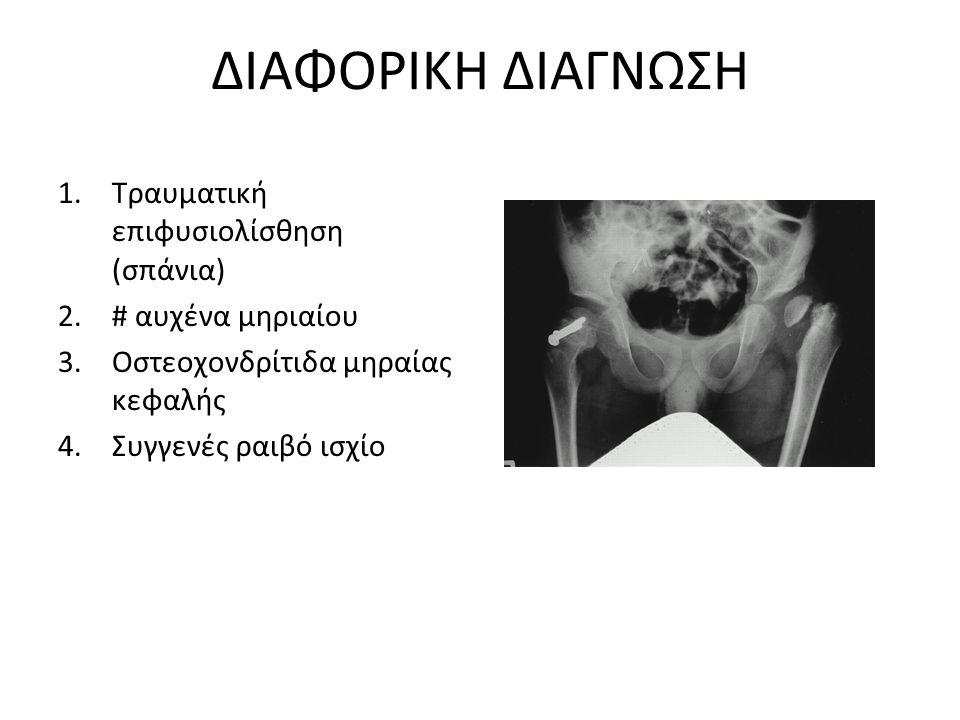 ΔΙΑΦΟΡΙΚΗ ΔΙΑΓΝΩΣΗ 1.Τραυματική επιφυσιολίσθηση (σπάνια) 2.# αυχένα μηριαίου 3.Οστεοχονδρίτιδα μηραίας κεφαλής 4.Συγγενές ραιβό ισχίο