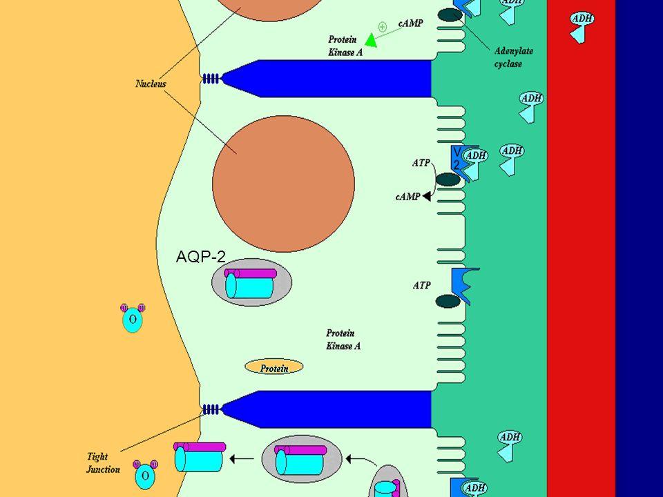 Μεταλλάξεις στο γονίδιο του υποδοχέα της ADH, AVPR2   Έχουν αναγνωριστεί εκατοντάδες μεταλλάξεις στο γονίδιο AVPR2   90% των περιπτώσεων κληρονομικού NDI εμφανίζουν φυλοσύνδετη κληρονομικότητα   Το αποτέλεσμα είναι υποδοχείς V2 με κακή στερεοδομή, οπότε και εγκλωβίζονται στο ενδοπλασματικό δίκτυο