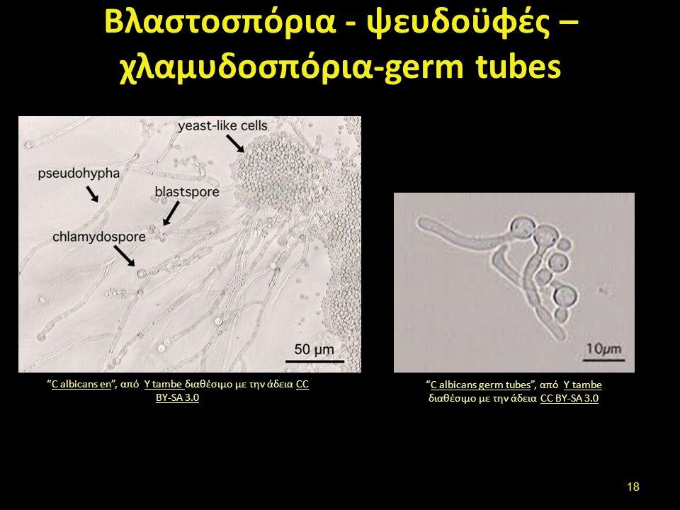 """Βλαστοσπόρια - ψευδοϋφές – χλαμυδοσπόρια-germ tubes """"C albicans en"""", από Y tambe διαθέσιμο με την άδεια CC BY-SA 3.0C albicans enY tambe CC BY-SA 3.0"""