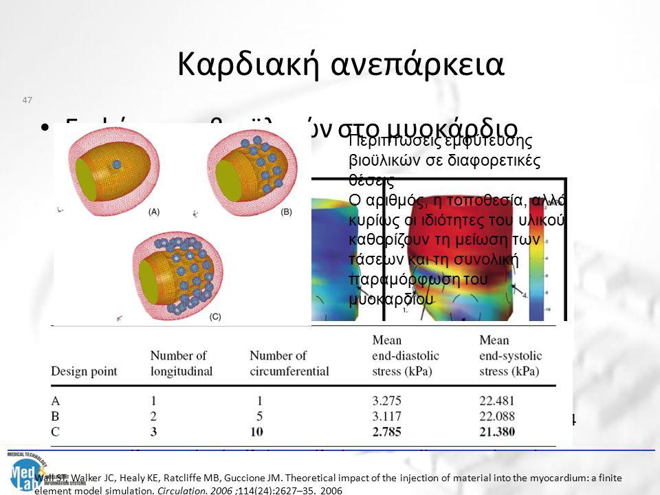 Καρδιακή ανεπάρκεια Εμφύτευση βιοϋλικών στο μυοκάρδιο A.Τάσεις πριν την εμφύτευση B.Τάσεις μετά την εμφύτευση C.Διαφορά τάσης μεταξύ των δύο περιπτώσε