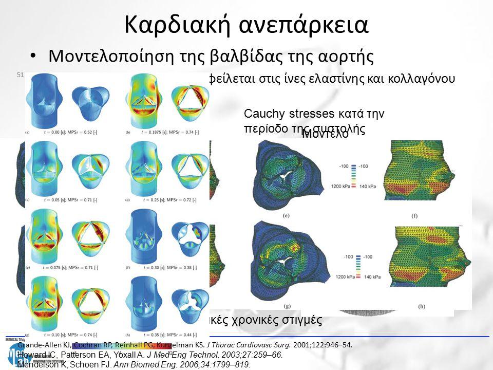 Καρδιακή ανεπάρκεια Μοντελοποίηση της βαλβίδας της αορτής – Η κίνηση της βαλβίδας οφείλεται στις ίνες ελαστίνης και κολλαγόνου Μοντέλο πεπερασμένων στ