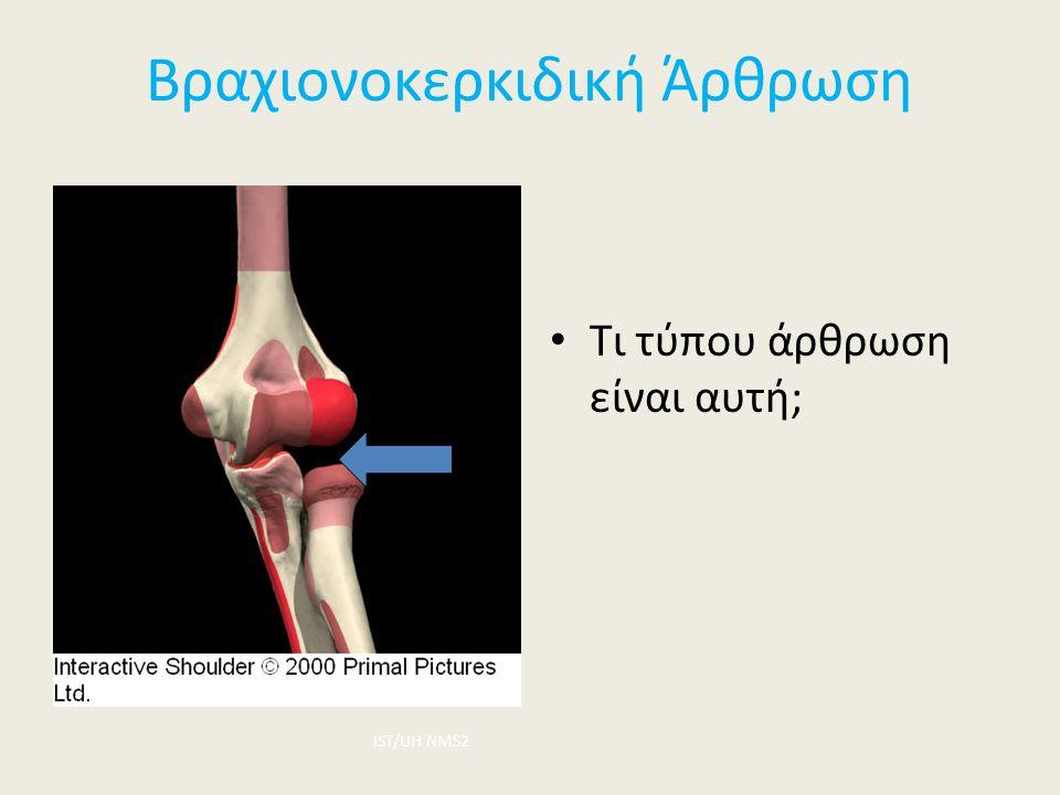 Βραχιονοκερκιδική Άρθρωση Τι τύπου άρθρωση είναι αυτή; ΙST/UH NMS2
