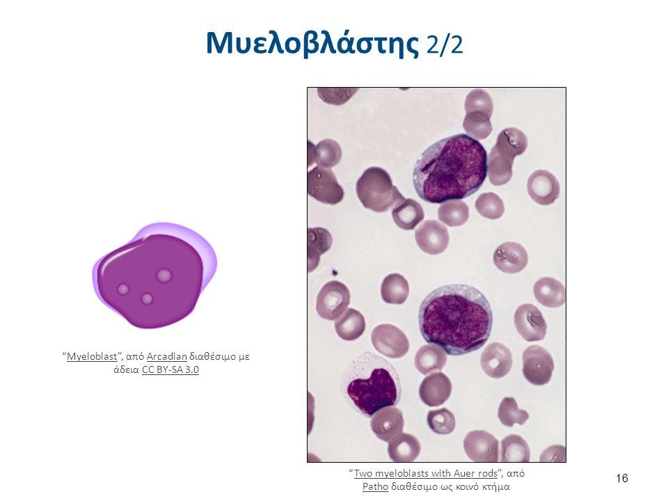 """Μυελοβλάστης 2/2 16 """"Myeloblast"""", από Arcadian διαθέσιμο με άδεια CC BY-SA 3.0MyeloblastArcadianCC BY-SA 3.0 """"Two myeloblasts with Auer rods"""", από Pat"""