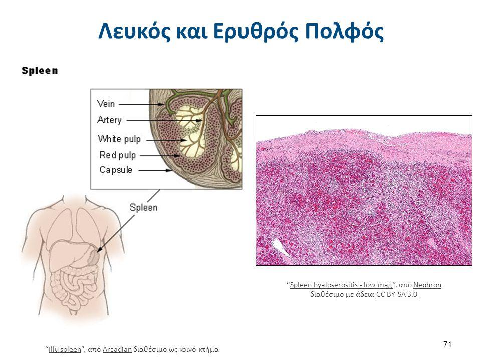 """Λευκός και Ερυθρός Πολφός 71 """"Illu spleen"""", από Arcadian διαθέσιμο ως κοινό κτήμαIllu spleenArcadian """"Spleen hyaloserositis - low mag"""", από Nephron δι"""