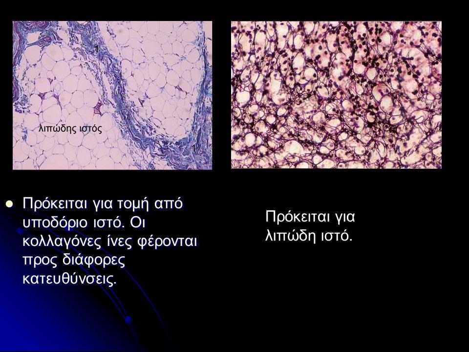Πρόκειται για τομή από υποδόριο ιστό.Οι κολλαγόνες ίνες φέρονται προς διάφορες κατευθύνσεις.