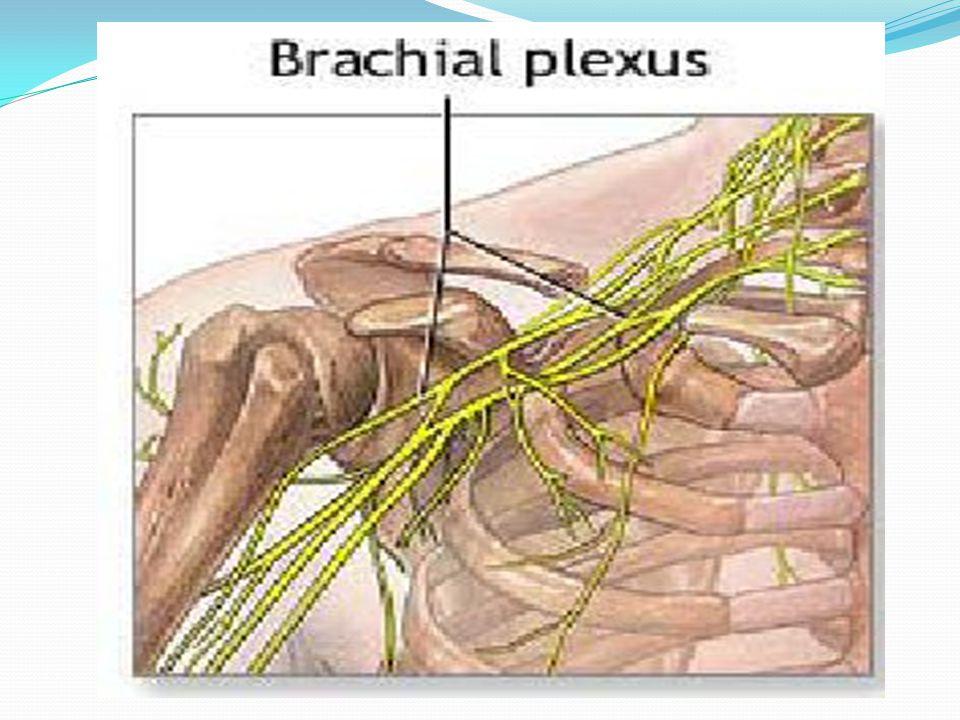 Τι είναι το βραχιόνιο πλέγμα; Είναι μια ομάδα από νεύρα που ξεκινούν στην αυχενική μοίρα Πορεύονται στο τράχηλο(λαιμό),τη μασχάλη και καταλήγουν στο χέρι