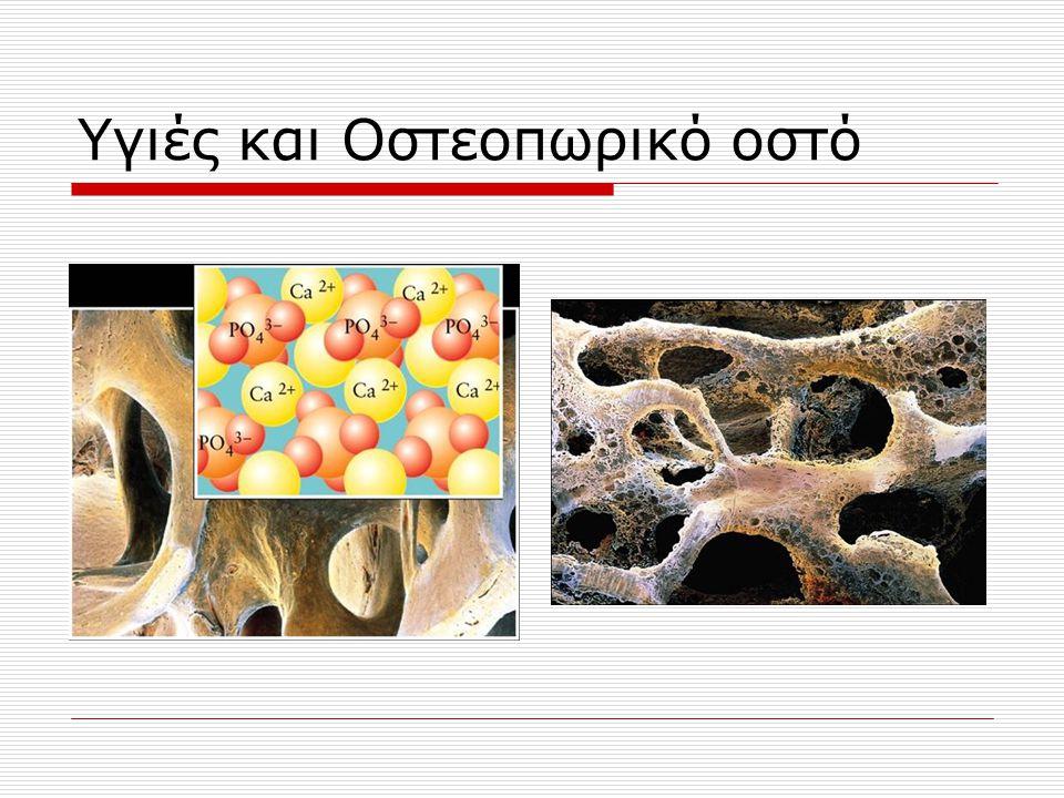 Υγιές και Οστεοπωρικό οστό