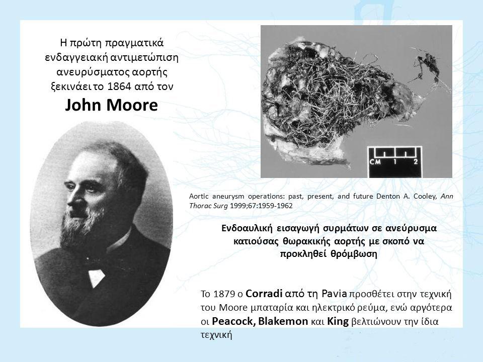 Η πρώτη πραγματικά ενδαγγειακή αντιμετώπιση ανευρύσματος αορτής ξεκινάει το 1864 από τον John Moore Ενδοαυλική εισαγωγή συρμάτων σε ανεύρυσμα κατιούσα