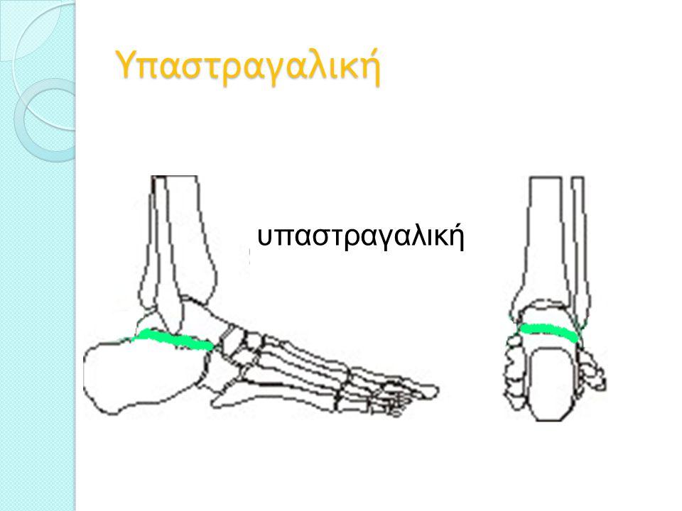 Βάδιση Ελέγχουμε το σύνολο της συμμετρίας του σώματος Ελέγχουμε τμηματικά για ασυμμετρία Έλεγχο κατά την επαφή της πτέρνας ( βλαισή / ραιβή ) Ελέγχουμε κατά τη φάση στήριξης για υπερ - πρηνισμό, ως ένα βαθμό ο πρηνισμός είναι φυσιολογικός για λόγους απόσβεσης φορτίων βλαισοποδία ραιβοποδία