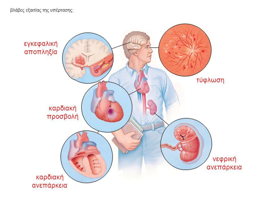 βλάβες εξαιτίας της υπέρτασης: τύφλωση νεφρική ανεπάρκεια καρδιακή ανεπάρκεια καρδιακή προσβολή εγκεφαλική αποπληξία