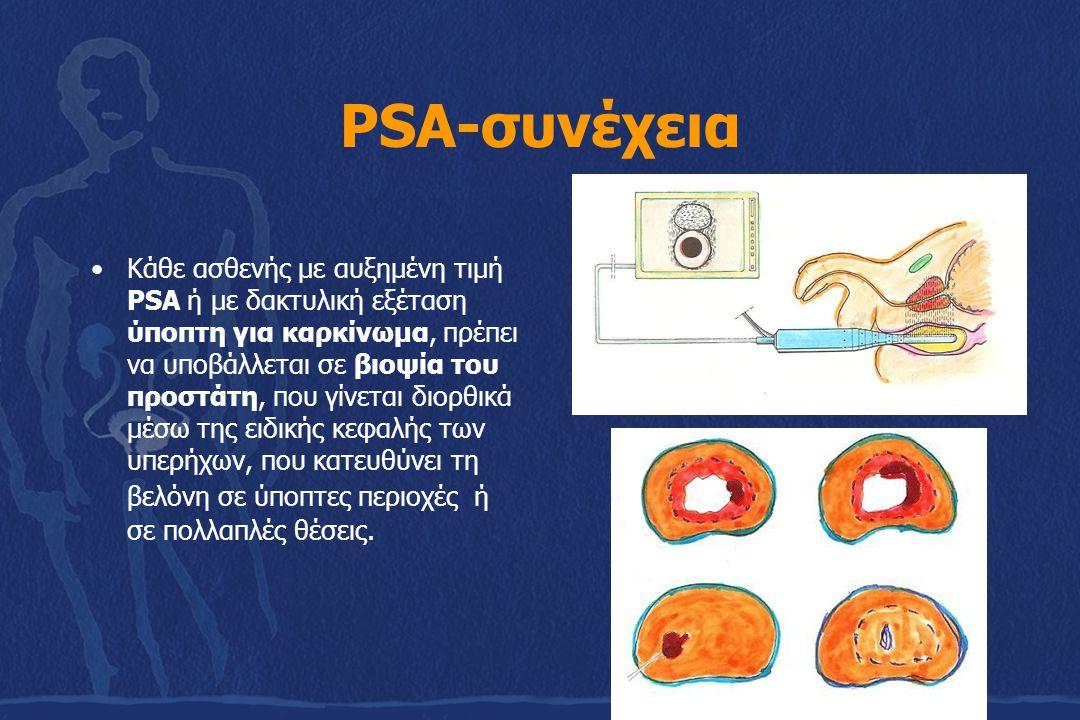 PSA-συνέχεια Κάθε ασθενής με αυξημένη τιμή PSA ή με δακτυλική εξέταση ύποπτη για καρκίνωμα, πρέπει να υποβάλλεται σε βιοψία του προστάτη, που γίνεται