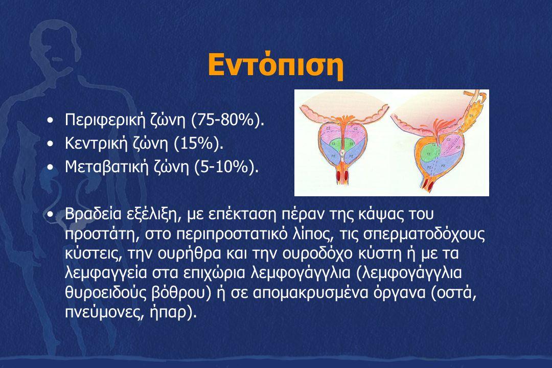 Εντόπιση Περιφερική ζώνη (75-80%). Κεντρική ζώνη (15%). Μεταβατική ζώνη (5-10%). Βραδεία εξέλιξη, με επέκταση πέραν της κάψας του προστάτη, στο περιπρ