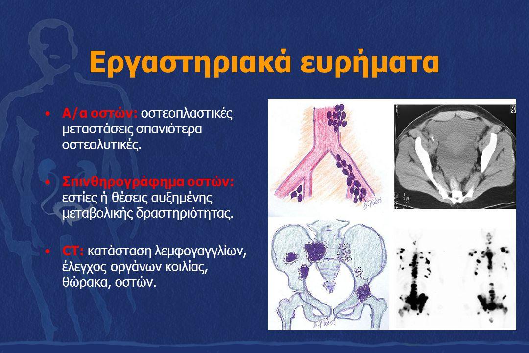 Εργαστηριακά ευρήματα Α/α οστών: οστεοπλαστικές μεταστάσεις σπανιότερα οστεολυτικές. Σπινθηρογράφημα οστών: εστίες ή θέσεις αυξημένης μεταβολικής δρασ