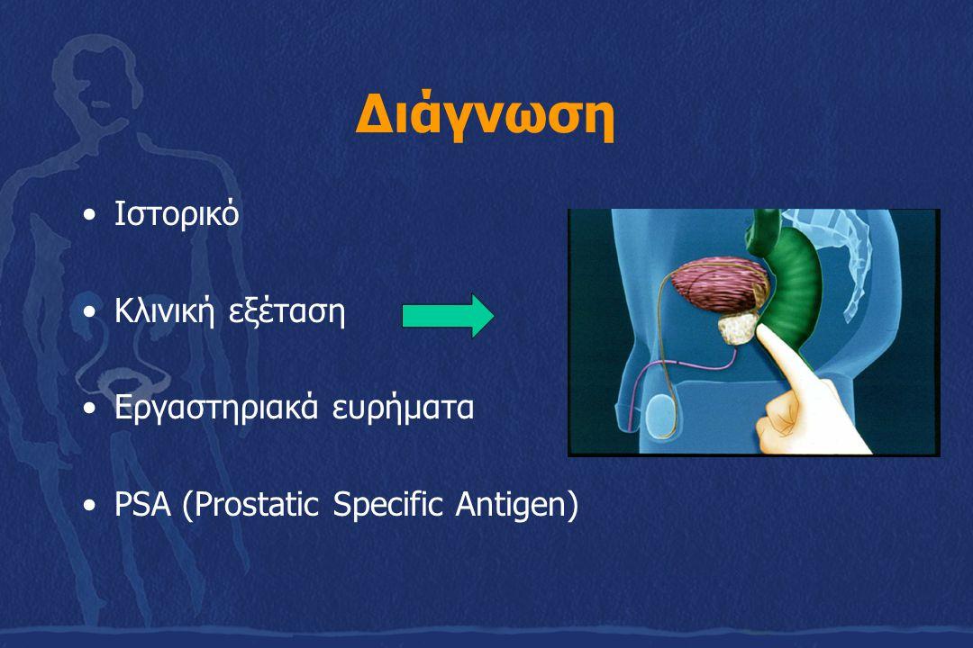 Διάγνωση Ιστορικό Κλινική εξέταση Εργαστηριακά ευρήματα PSA (Prostatic Specific Antigen)