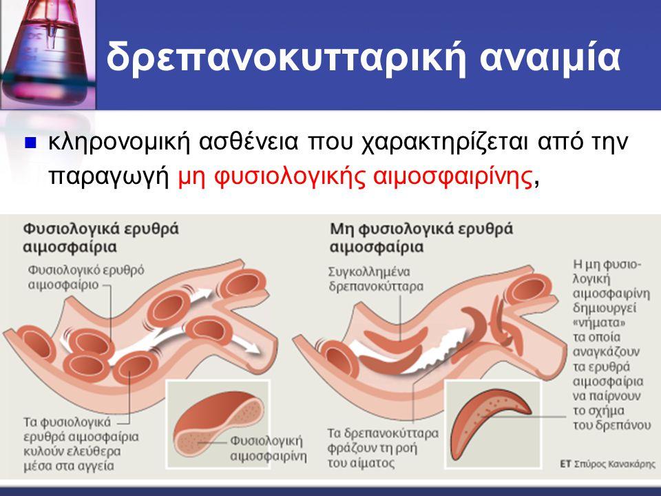 δρεπανοκυτταρική αναιμία κληρονομική ασθένεια που χαρακτηρίζεται από την παραγωγή μη φυσιολογικής αιμοσφαιρίνης,