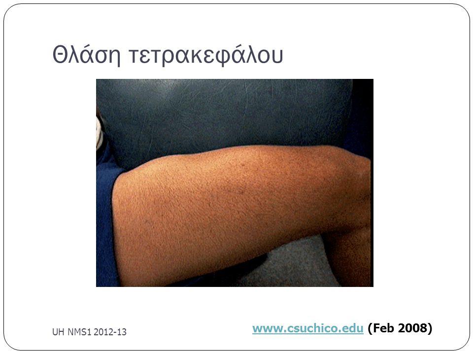 Θλάση τετρακεφάλου UH NMS1 2012-13 www.csuchico.eduwww.csuchico.edu (Feb 2008)