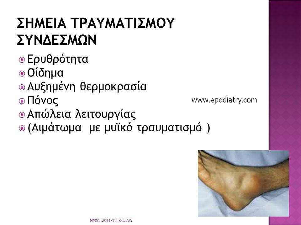  Ερυθρότητα  Οίδημα  Αυξημένη θερμοκρασία  Πόνος  Απώλεια λειτουργίας  (Αιμάτωμα με μυϊκό τραυματισμό ) ΣΗΜΕΙΑ ΤΡΑΥΜΑΤΙΣΜΟΥ ΣΥΝΔΕΣΜΩΝ NMS1 2011-12 BG, AW www.epodiatry.com