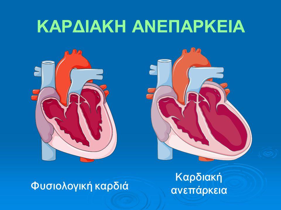 ΚΑΡΔΙΑΚΗ ΑΝΕΠΑΡΚΕΙΑ Φυσιολογική καρδιά Καρδιακή ανεπάρκεια