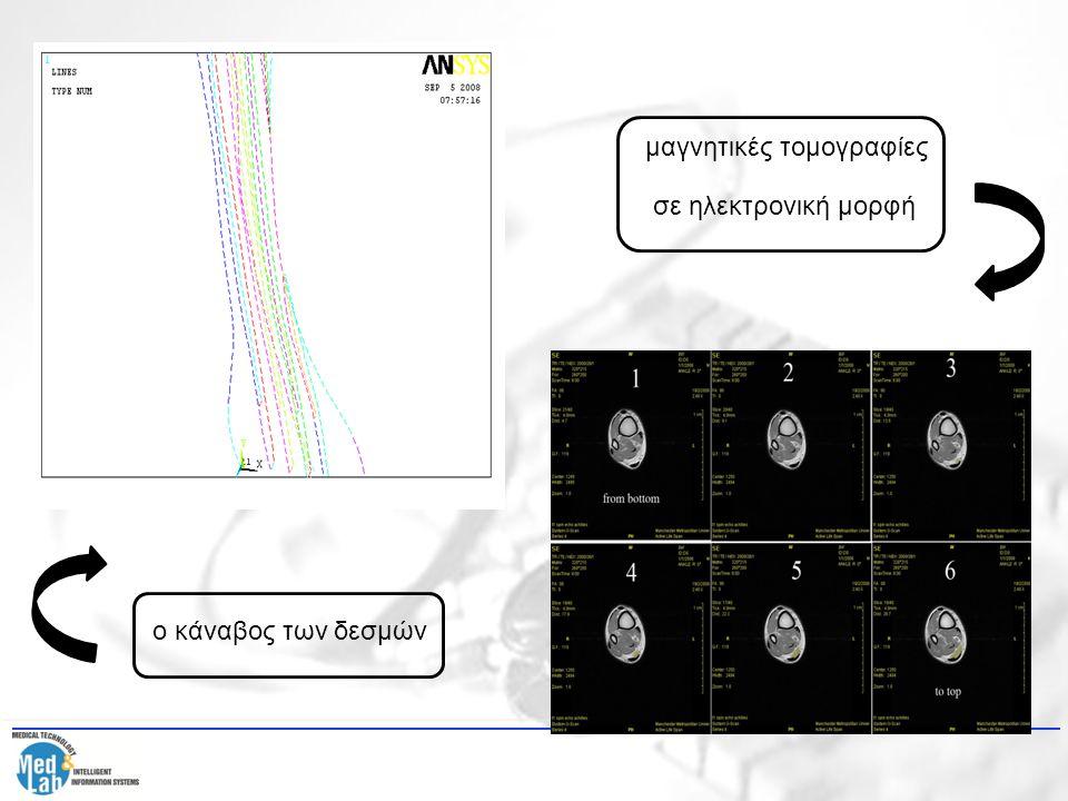ο κάναβος των δεσμών μαγνητικές τομογραφίες σε ηλεκτρονική μορφή