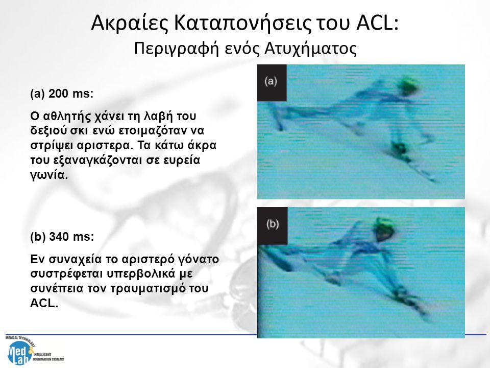 Ακραίες Καταπονήσεις του ACL: Περιγραφή ενός Ατυχήματος (a) 200 ms: Ο αθλητής χάνει τη λαβή του δεξιού σκι ενώ ετοιμαζόταν να στρίψει αριστερα. Τα κάτ