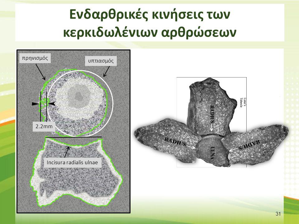 Ενδαρθρικές κινήσεις των κερκιδωλένιων αρθρώσεων 31 Incisura radialis ulnae υπτιασμός πρηνισμός 2.2mm