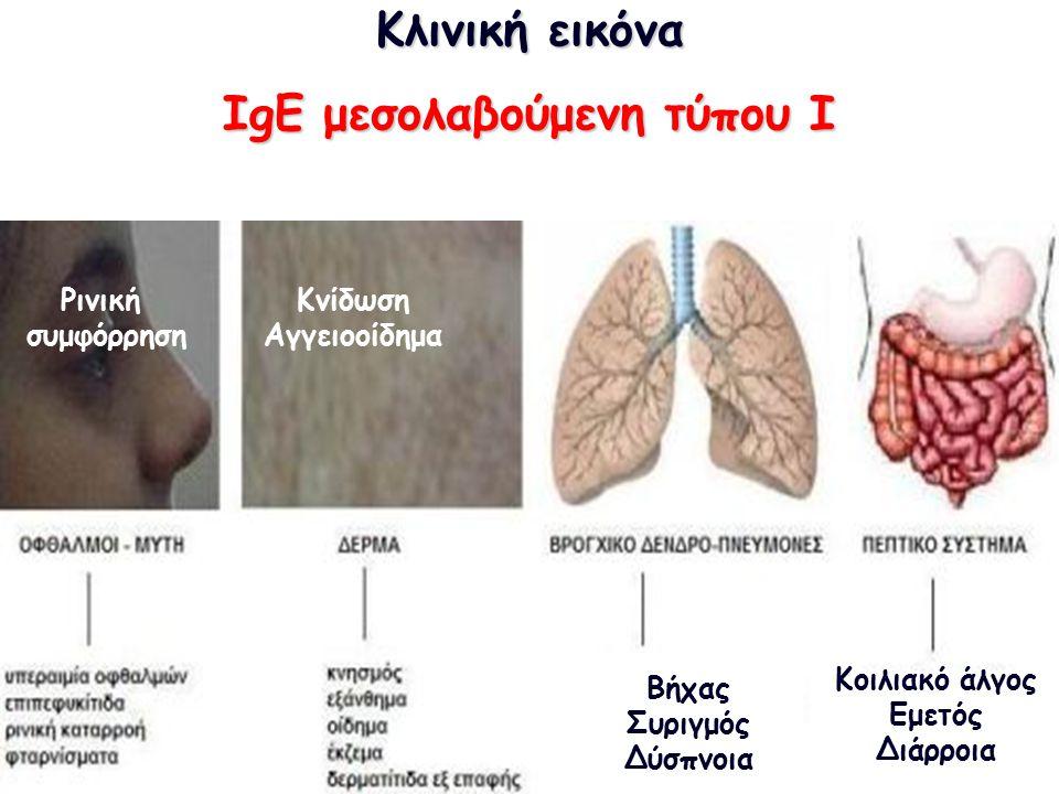 Κλινική εικόνα ΙgE μεσολαβούμενη τύπου I Αναφυλαξία Κνίδωση Αγγειοοίδημα Ρινική συμφόρρηση Βήχας Συριγμός Δύσπνοια Κοιλιακό άλγος Εμετός Διάρροια
