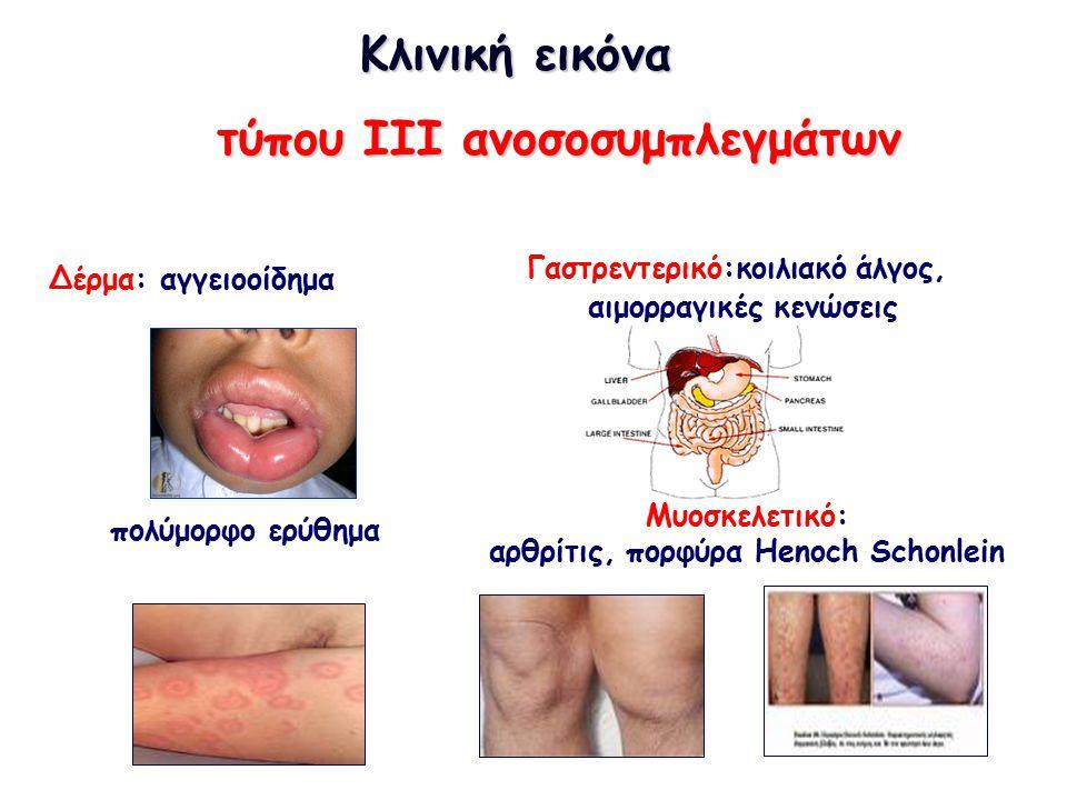 Κλινική εικόνα Κλινική εικόνα τύπου III ανοσοσυμπλεγμάτων Δέρμα: αγγειοοίδημα πολύμορφο ερύθημα Μυοσκελετικό: αρθρίτις, πορφύρα Henoch Schonlein Γαστρεντερικό:κοιλιακό άλγος, αιμορραγικές κενώσεις