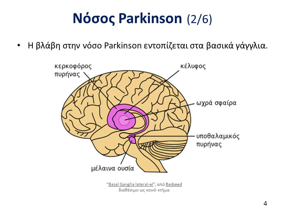 Νόσος Parkinson (2/6) Η βλάβη στην νόσο Parkinson εντοπίζεται στα βασικά γάγγλια.