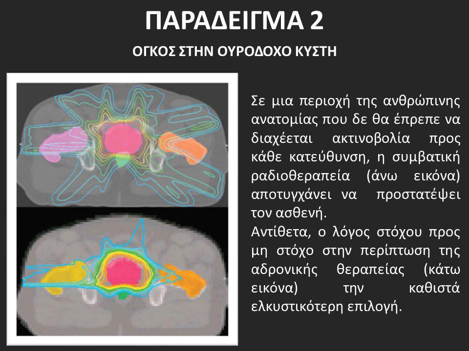 ΠΑΡΑΔΕΙΓΜΑ 2 ΟΓΚΟΣ ΣΤΗΝ ΟΥΡΟΔΟΧΟ ΚΥΣΤΗ Σε μια περιοχή της ανθρώπινης ανατομίας που δε θα έπρεπε να διαχέεται ακτινοβολία προς κάθε κατεύθυνση, η συμβα