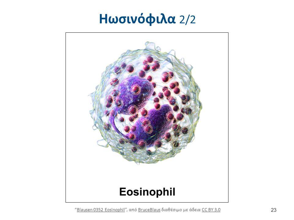 """Ηωσινόφιλα 2/2 23 """"Blausen 0352 Eosinophil"""", από BruceBlaus διαθέσιμο με άδεια CC BY 3.0Blausen 0352 EosinophilBruceBlausCC BY 3.0"""