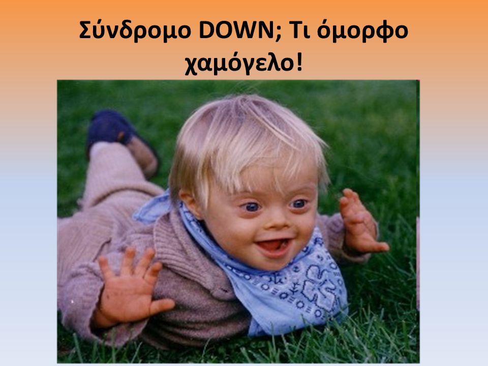 Σύνδρομο DOWN; Τι όμορφο χαμόγελο!