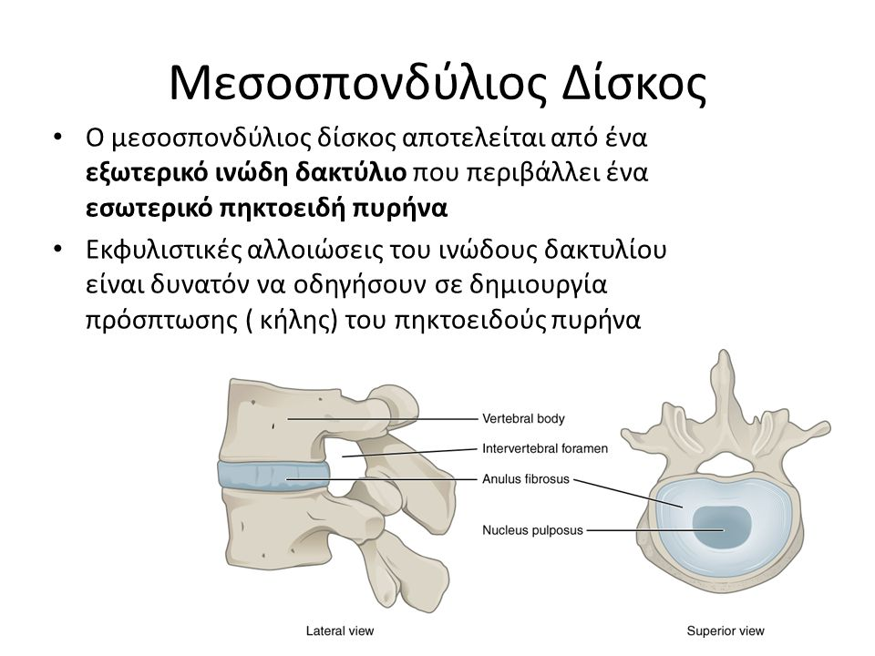 Μεσοσπονδύλιος Δίσκος Ο μεσοσπονδύλιος δίσκος αποτελείται από ένα εξωτερικό ινώδη δακτύλιο που περιβάλλει ένα εσωτερικό πηκτοειδή πυρήνα Εκφυλιστικές