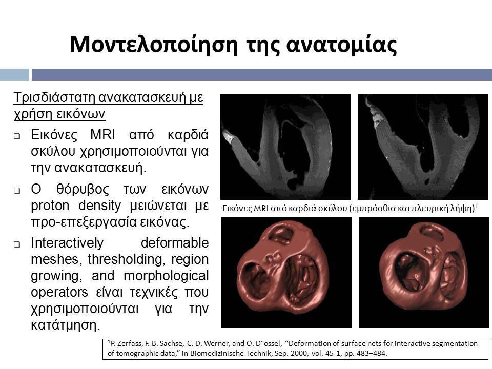 Εικόνες MRI από καρδιά σκύλου ( εμπρόσθια και πλευρική λήψη ) 1 Τρισδιάστατη ανακατασκευή με χρήση εικόνων  Εικόνες MRI από καρδιά σκύλου χρησιμοποιο