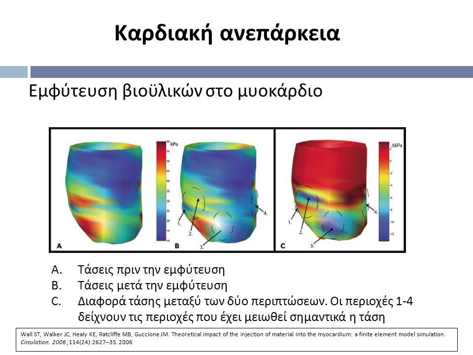 Εμφύτευση βιοϋλικών στο μυοκάρδιο A.Τάσεις πριν την εμφύτευση B.Τάσεις μετά την εμφύτευση C.Διαφορά τάσης μεταξύ των δύο περιπτώσεων. Οι περιοχές 1-4