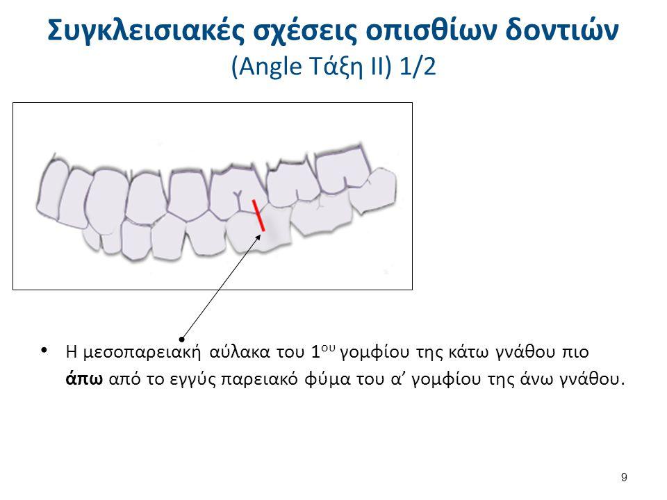 9 Συγκλεισιακές σχέσεις οπισθίων δοντιών (Angle Τάξη ΙΙ) 1/2 Η μεσοπαρειακή αύλακα του 1 ου γομφίου της κάτω γνάθου πιο άπω από το εγγύς παρειακό φύμα