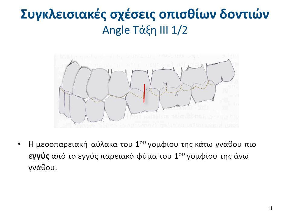 Η μεσοπαρειακή αύλακα του 1 ου γομφίου της κάτω γνάθου πιο εγγύς από το εγγύς παρειακό φύμα του 1 ου γομφίου της άνω γνάθου. 11 Συγκλεισιακές σχέσεις