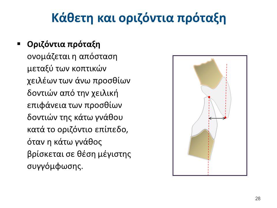  Οριζόντια πρόταξη ονομάζεται η απόσταση μεταξύ των κοπτικών χειλέων των άνω προσθίων δοντιών από την χειλική επιφάνεια των προσθίων δοντιών της κάτω